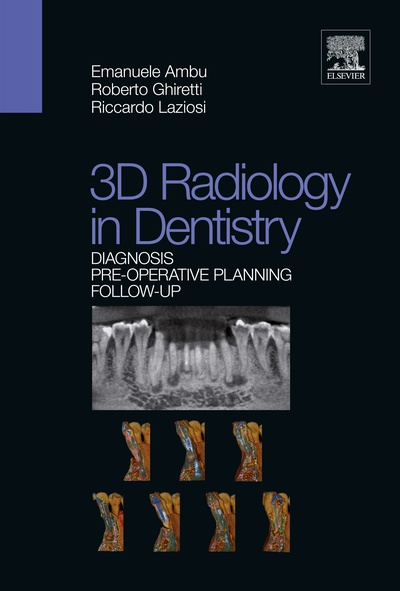 3D radiology in dentistry -  Diagnosis Pre-operative Planning Follow-up